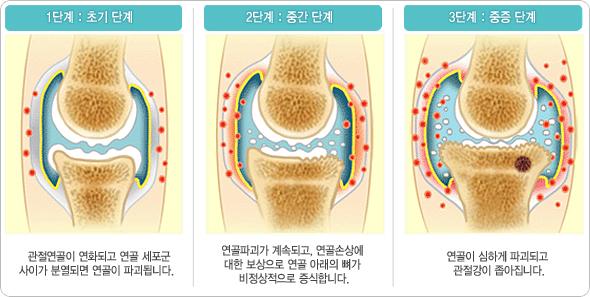 관절염 그림2.jpg